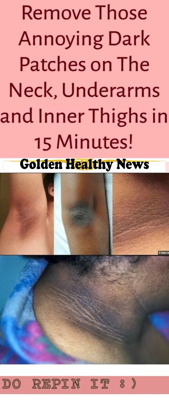 REMOVE THOSE ANNOYING DARK PATCHES ON THE NECK UNDERARMS AND INNER THIGHS IN 15 MINUTES