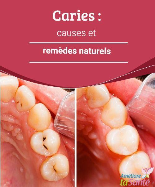 Caries : causes et remèdes naturels Les caries sont fréquentes et il est parfois difficile de s'en débarrasser ! Comment les éviter ? Nous vous proposons des remèdes naturels !