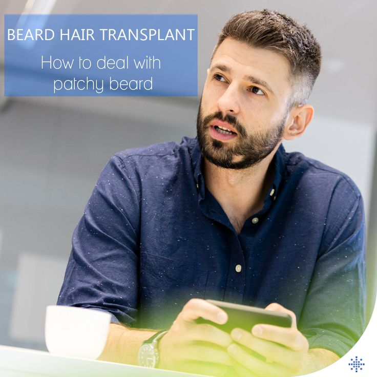 The permanent solution for beard and moustache loss is beard transplantation.  /// For more information  WhatsApp: 0090543 470 47 09 ///  #beardtransplant #hairtransplant #haartransplantation #fuehairtransplant #bald #beard #trasplantedepelo #haartransplantatie #trasplantecapilar #trapiantodicapelli #pérdidadecabello #hairloss #medicaltravel #realself #ishrs #haarlos #alopezie #زراعةالشعر #毛髪移植