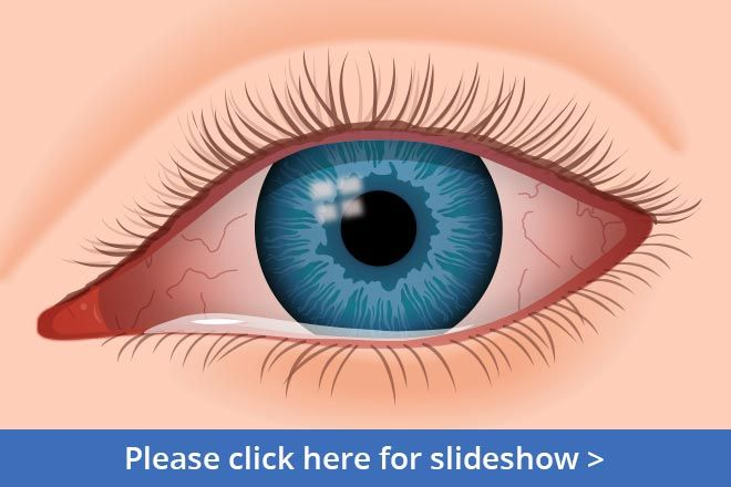 Please click here for a slide show on the different types of pink eye