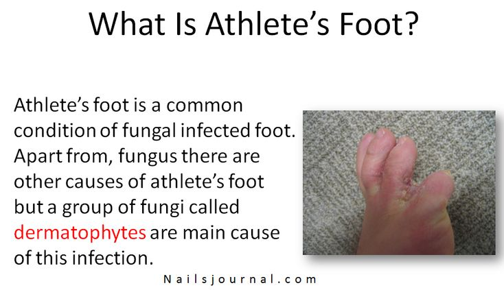 What Is Athlete's Foot and What Causes Athlete's Foot?