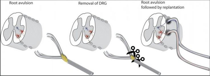 Both ventral and dorsal roots have been detached, which is the common scenario clinically, the ventral root is implanted directly into the cord as is dorsal root, but after the ganglion has been cut out. In the final drawing the possible re-established connections and reflex arch are colored.