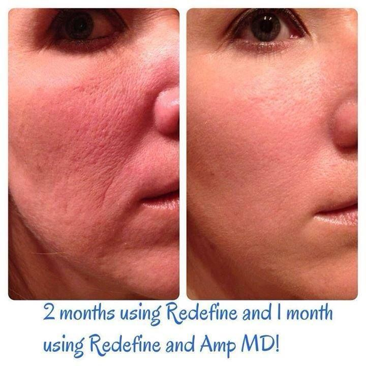 177 Best Images About Rodan And Fields Dermatologists