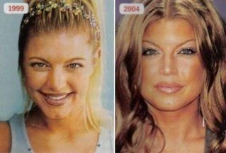 #Fergie #job #Nose     Fergie before and after nose job.
