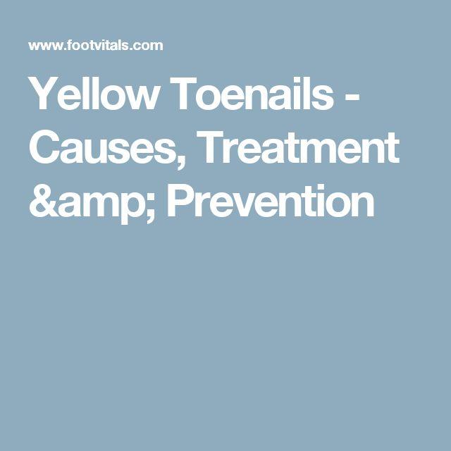 Yellow Toenails - Causes, Treatment & Prevention