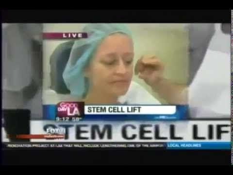 Лифтинг лица_уникальные технологии репортаж на канале FOX 11 Stem Cell F...