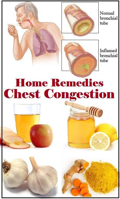 Home Remedies For Sinus Infection Chest Congestion
