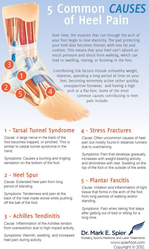 5 Common Causes of Heel Pain Find great products to help alleviate your #heel pain at our e-store:  www.DPMUnited.com/KirkPodiatry