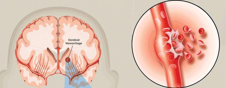 Hemorrhagic stroke | Stroke.org