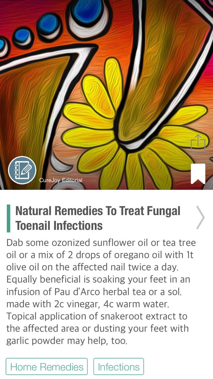 Natural Remedies To Treat Fungal Toenail Infections - via @CureJoy