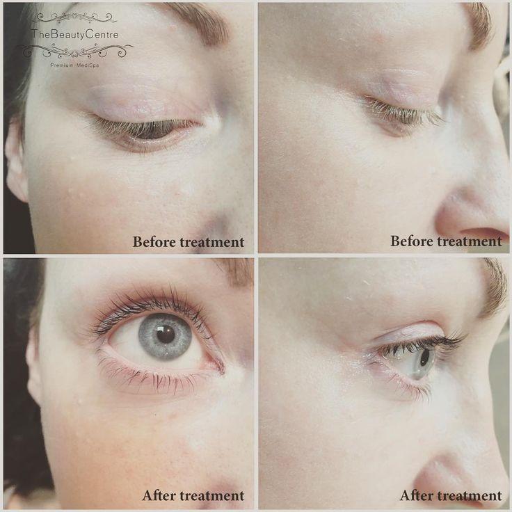Before & After Lash Lift! #lashes #lashlift #lvl #beauty #treatment #longlashes #Salon #lashtint #essex #thebeautycentrebraintree