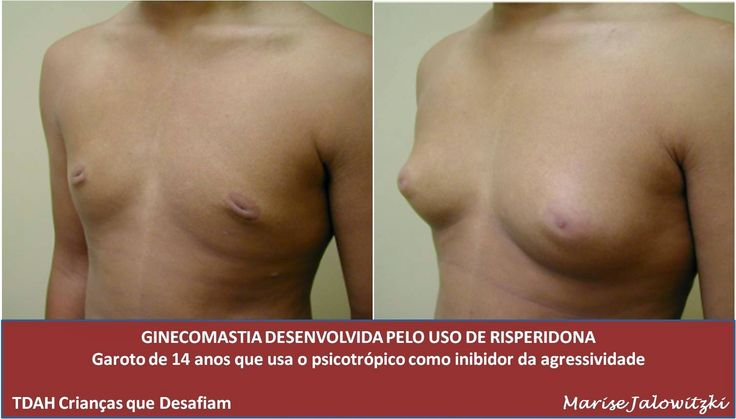 COMPROMISSO CONSCIENTE: Gynecomastia adolescente - Efeitos colaterais - Ri...