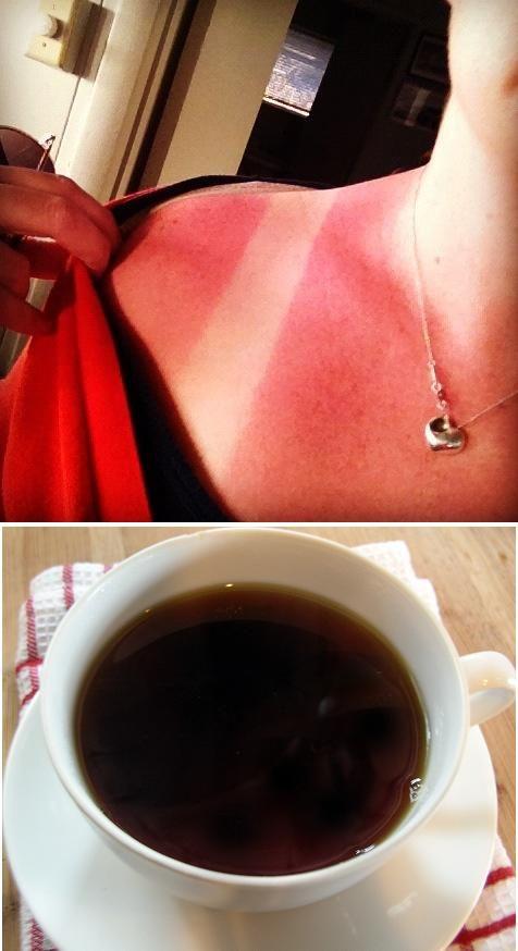Get Rid of Sunburn using Black Tea! Finally found something against sunburns!! Soooooo HAPPY :D