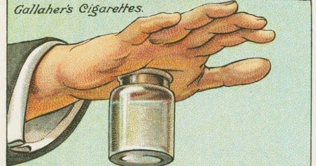 Tips om splinters te verwijderen. Indien mogelijk de splinter verwijderen met een pincet. Trek een splinter er altijd in lengte-richting uit, dat is precies de omgekeerde ric...
