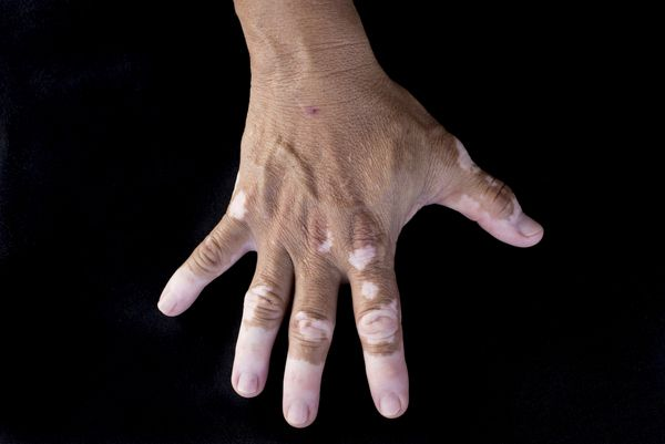 LEUCODERMA: Leucoderma is a Latin word which truly means 'white skin.