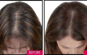 Magia para transformar cabelo fino em grosso, faça seu cabelo crescer rápido com 3 ingredientes