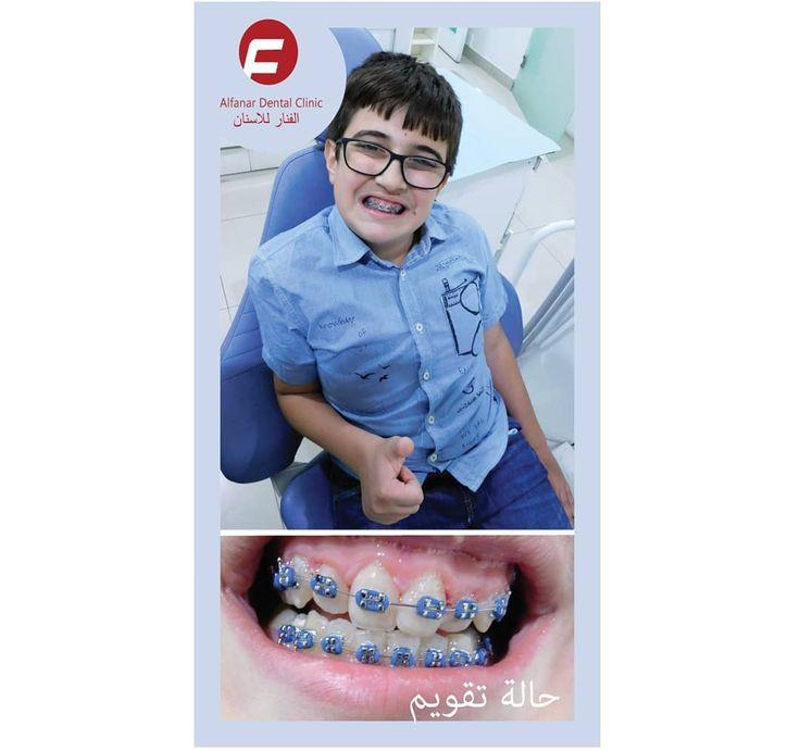 احدى مرضانا للتقويم  #amazing #breakfast #seafood #party #art #restaurante #foodies #gourmet #fish #follow  #medical #orthodontics #oralsurgeon #estetica #dentalassistant #dentallife #dentalwork #dentalcare #dentalhygiene #dentalphotography #implantology#q8 #الكويت #oman #fashion #قطر #كويت #البحرين #love #kwt