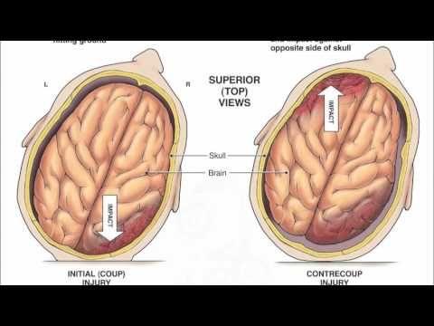 #TheStrokeZone: #TheStrokeZone Stem Cell- traumatic brain injury