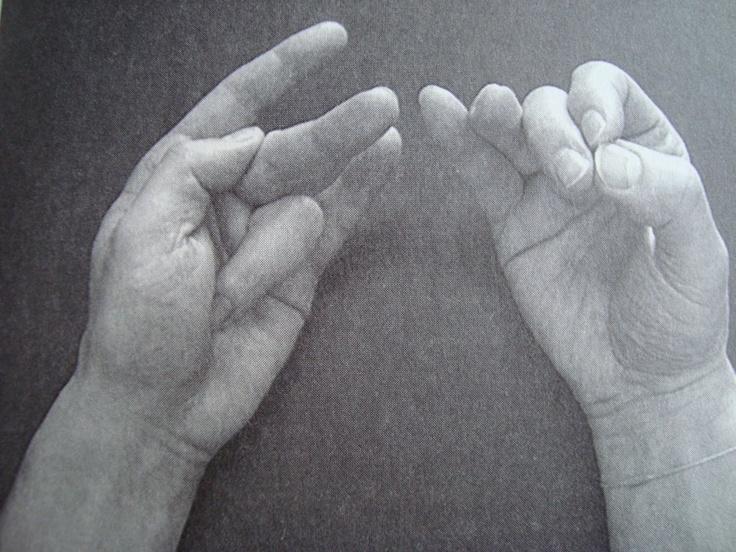 Als je hoofdpijn hebt, werkt deze mudra beter dan een aspirientje. Rechts duim, wijsvinger en middelvinger tegen elkaar. Links je duim op het derde middelvingerkootje en je ringvinger op de duimwortel. 2x daags 7 minuten. Werkt ook preventief. Het gaat hier om niet-specifieke hoofdpijn.