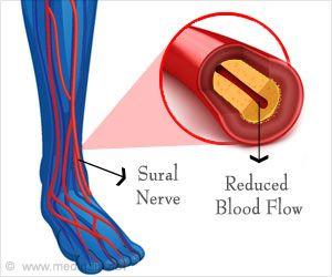 Low-fat Vegan Diet Reduces Nerve Pain and Blood Pressure In Type 2 Diabetics
