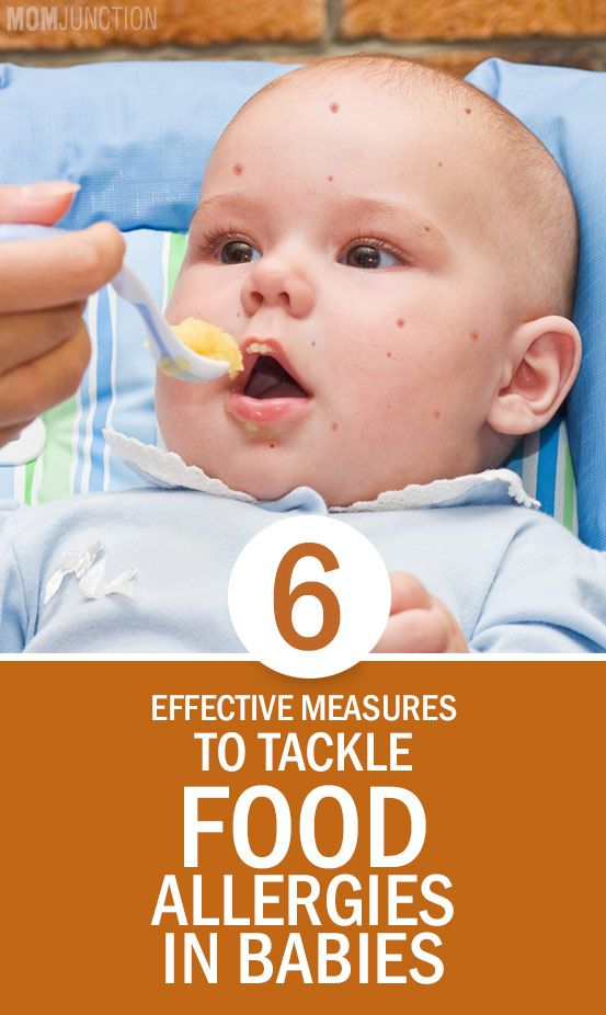 6 Effective Measures To Tackle Food Allergies In Babies: Foods that cause allergic reaction in children are called food allergens. There are more than 160 specific kinds of food allergens as per the latest study.