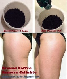 Coffee Grounds Exfoliating Scrub Cellulite Remedy
