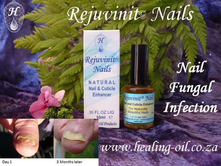 Rejuvinit Nails and Cuticle oil - ideal for fungal infected nails. Use with Acrylic and Gel nails. Will not damage or loosen false nails. Exclusive Beauty Products www.healing-oil.co.za