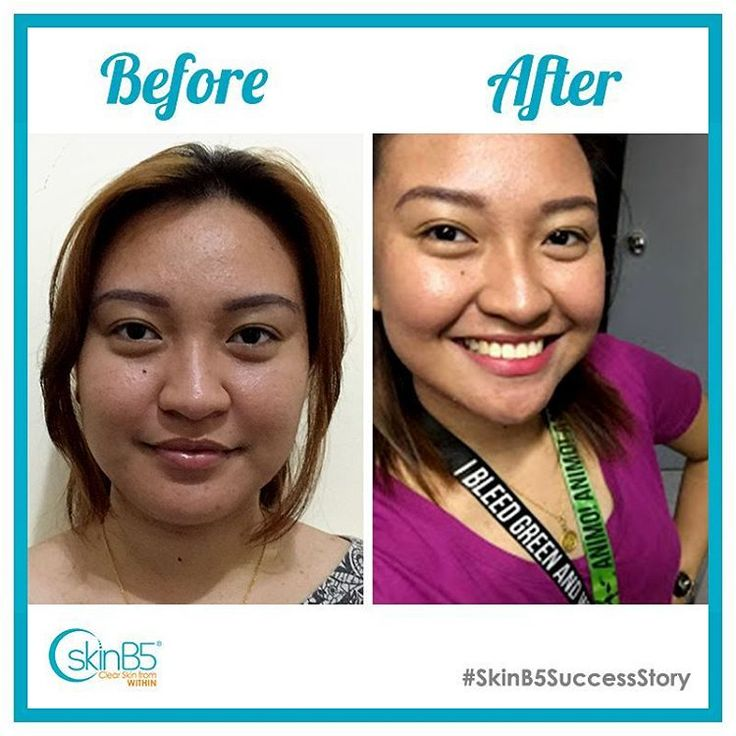 """#SkinB5SuccessStories Yhllie Soriano Philippines  The Acne Control Range products did absolute amazing results! My face doesn't oil up that much as before. A lot of my acne/pimples that are on my back and chest disappeared. I occasionally get a few acne due to the """"time of the month"""", but during normal days, my skin is smooth and bump-free. I like the mask most, since it pretty helps to dry your zits asap. And this product's ingredient is natural and full of vitamins and minerals makes it…"""