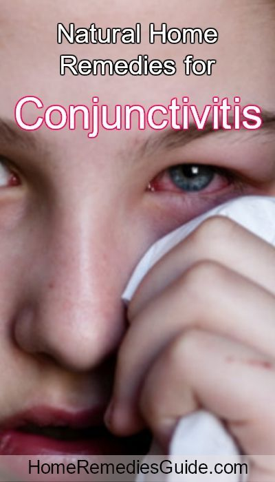 To treat and prevent Conjunctivitis at home, try these effective natural remedies.