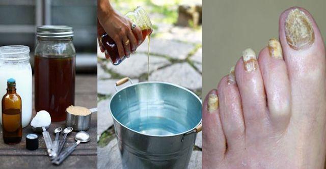 Recept z 2 ingrediencií eliminuje vašu nechtovú pleseň navždy. | Domáca Medicína