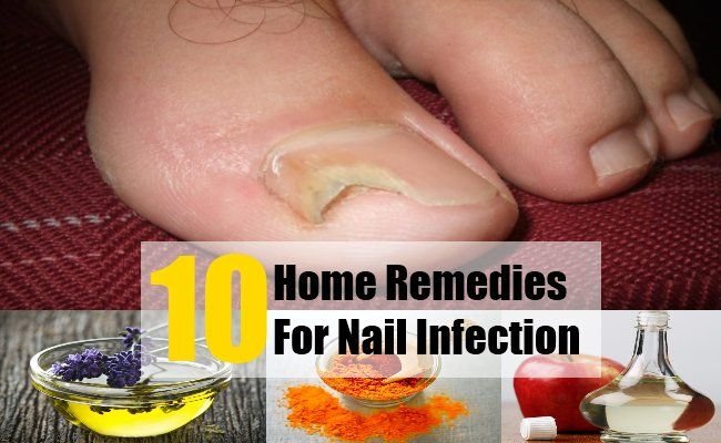 Toenail fungus and other types of nail infections can cause inflammation and pain in the nails. The nail can become swollen and yellow. It can become thick and crumbled. Nail infection can be due to wearing synthetic socks, diabetes and low immunity. It can be due to moist environment, sweaty shoes, abnormal skin pH and poor hygiene. If the nail infection is left untreated, it can cause cracking and splitting of the nail. Sometimes, the whole nail can break off.If you have nail infection…