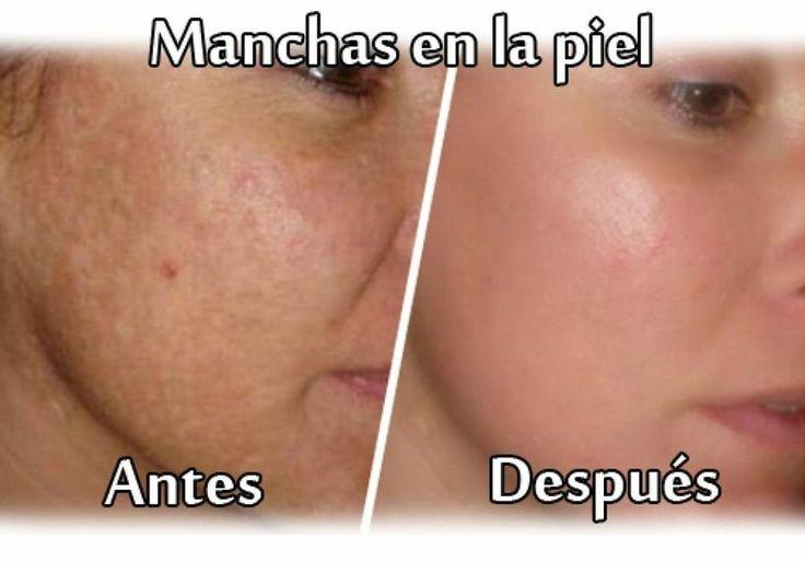 Descubre los mejores y más efectivos consejos para eliminar las anchas de la piel.