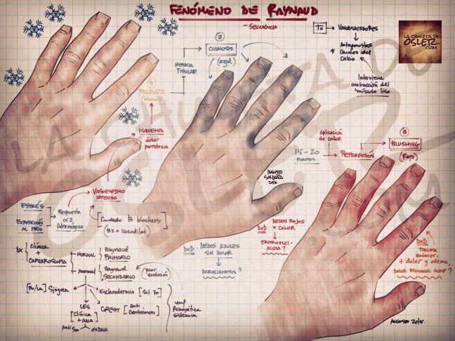 """Reumatología: Fenómeno de Raynaud.  No es un síndrome clínico, sino un signo que puede presentarse aislado (Raynaud primario) o como parte de una constelación de signos, síntomas que forman un síndrome (i.e. LES, Sjögren, escleroderma). Se desencadenan 3 eventos, y """"colores"""", consecutivos: 1.Palidez: –Blanco, por la reducción del flujo. 2.Cianosis –Azul, por hipoxia tisular. 3.Eritema –Rojo, significa que ha terminado el fenómeno y el flujo sanguíneo se ha reestablecido."""