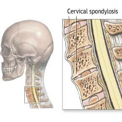 Causes Of Cervical Spondylosis And Neck Arthritis - Risk & Symptoms Of Cervical Spondylosis | Arthritis Treatment and Natural Cure