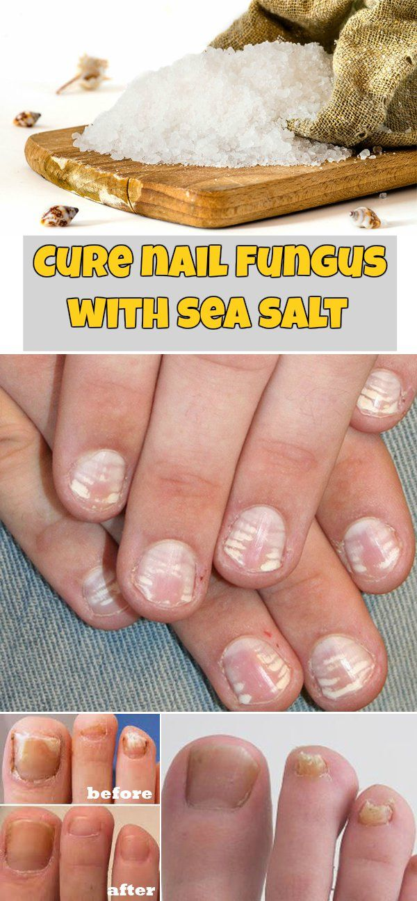 Cure nail fungus with sea salt