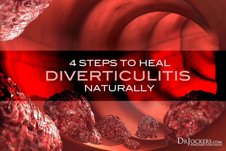 Diverticulitis Treatment Naturally
