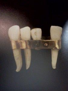 dental bridge circa 300BC