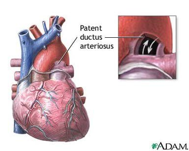 What is a Patent Ductus Arteriosus (PDA)?: PDA is short for patent ductus arteriosus, a common heart condition in preemies.