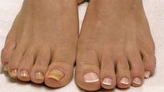 Лучшее домашнее средство от грибка ногтей всего из двух ингредиентов! - Что хочет женщина
