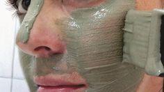 Máscara milagrosa para melasma e manchas no rosto | Cura pela Natureza.com.br 1 tijela de vidro (esqueça plástico e alumínio;o vidro é o material mais adequado para argilas); - 1 colher de pau (esqueça metal e plástico; a madeira é o material mais adequado para argilas); - ponha 2 colheres (de sopa) de argila verde, 1 colher (de sopa) de leite de magnésia e um pouco de água mineral.