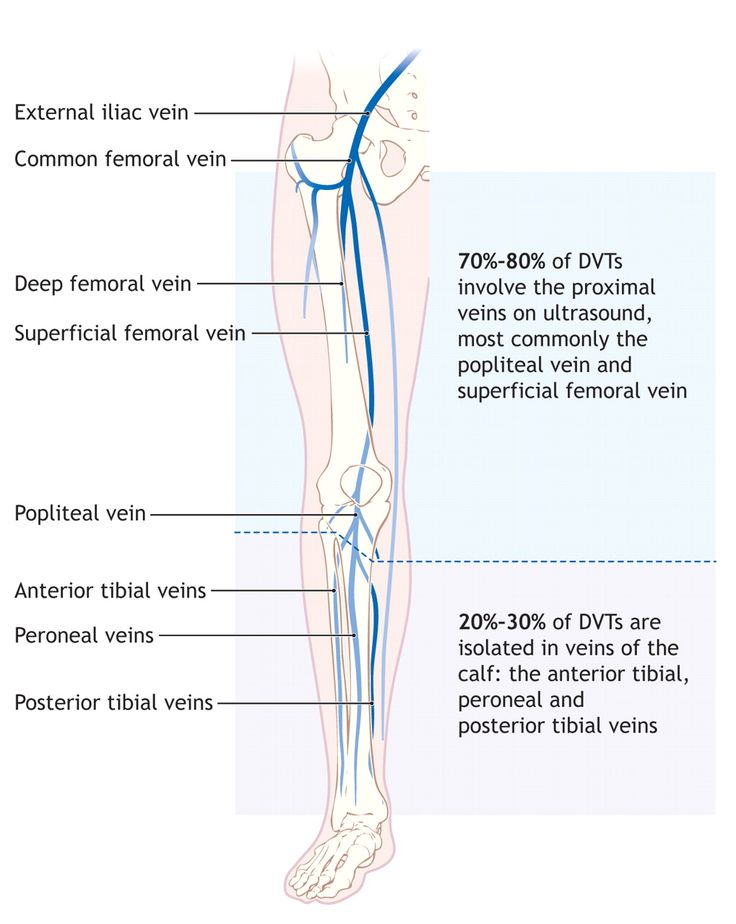 73 best study tips and tricks images on pinterest vascular diagnosis and treatment of deep vein thrombosis publicscrutiny Image collections