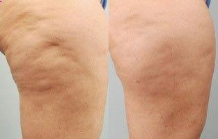 cellulaze-before-after-01