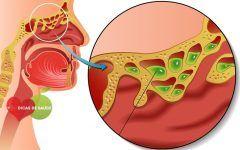 Sinusite – O que é, Causas e Tratamentos
