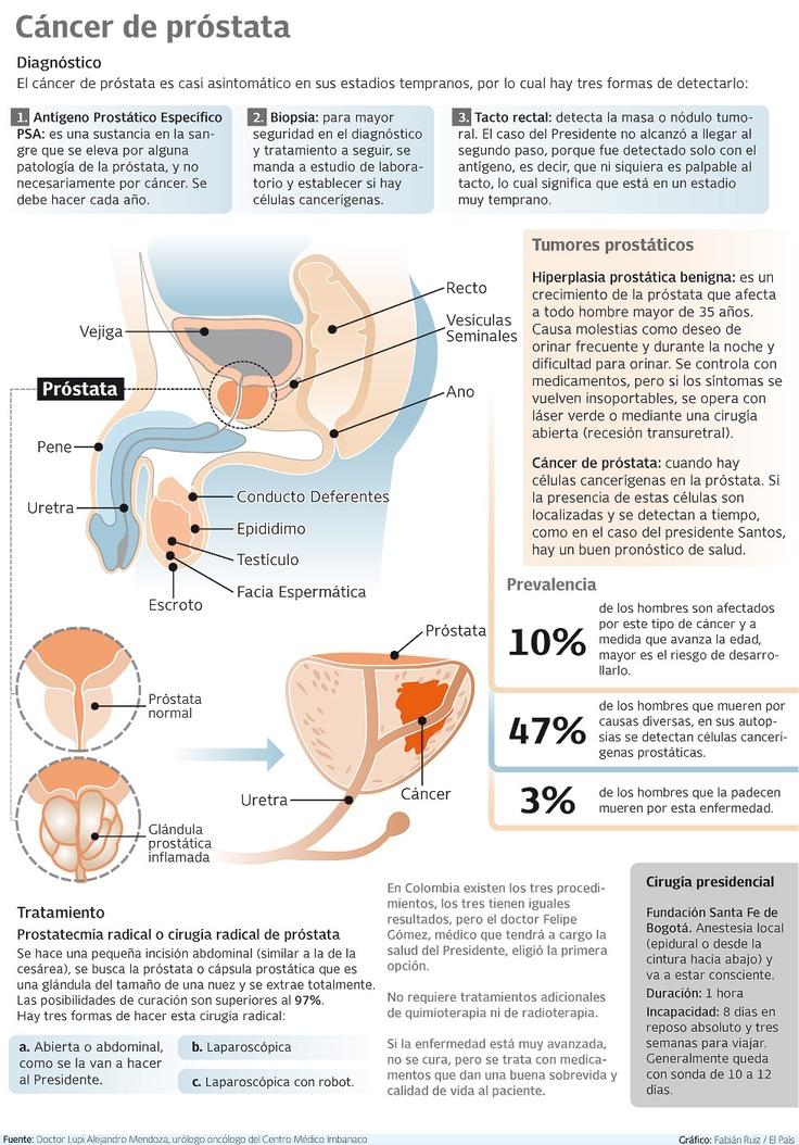 Gráfico: ¿Qué es la próstata y en qué consiste el cáncer de esta glándula? | EL PAIS