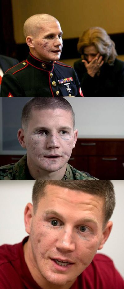 "Modern Medicine and War - William ""Kyle"" Carpenter lost most of his jaw and an eye when he fell on a grenade to shield a fellow Marine from the blast. His body shattered, one lung collapsed, the Marine lance corporal was nearly given up for dead after that 2010 Afghanistan firefight.    Then he spent 2½ years in a hospital as doctors worked to rebuild his body"