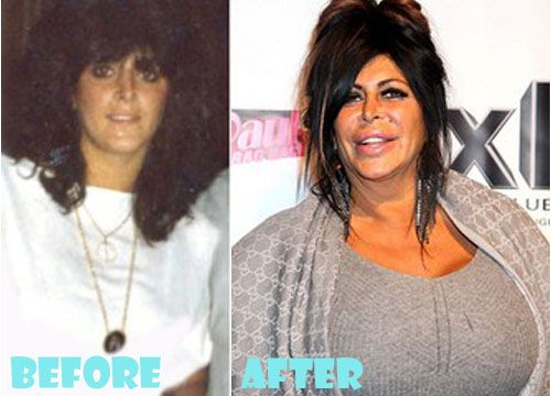 Big Ang Plastic Surgery Before and After Pictures