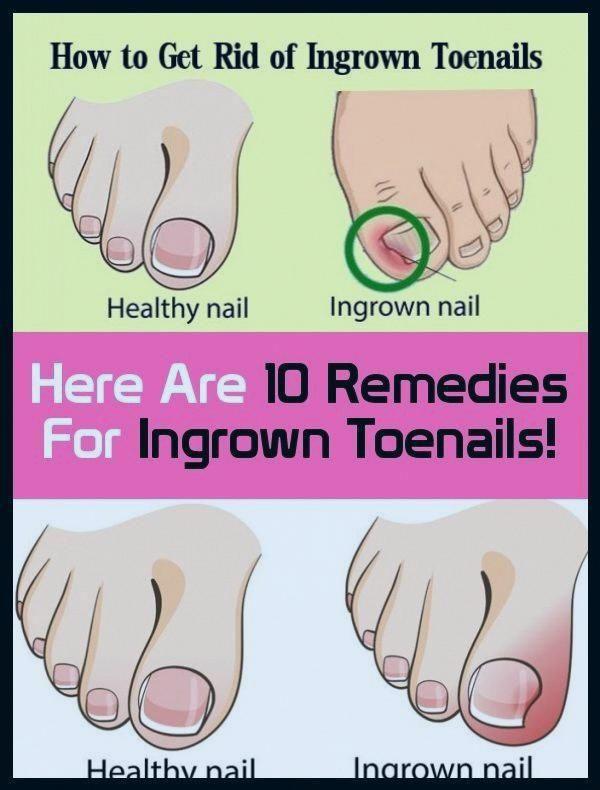 Pin On Ingrown Nails