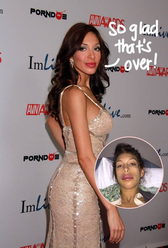 Farrah Abraham Opens Up About Her Botched Lip Implants, But That Doesn't Stop Her From Thinking About Getting More Work Done!