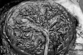Placenta, like a tree!