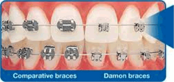 Clear Ceramic Braces   Damon Braces Cost Sydney
